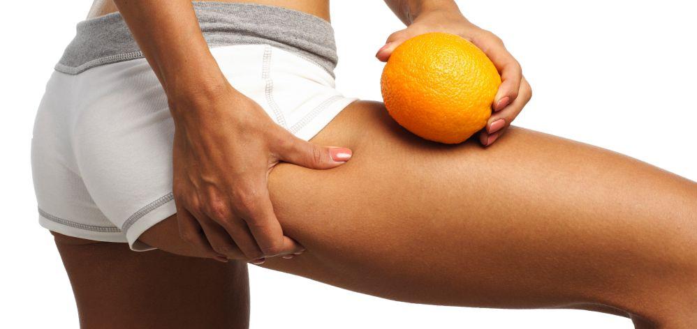 Cellulite cos'è e tutti i trattamenti per curarla