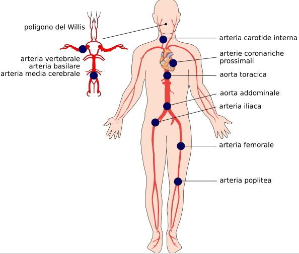 Localizzazioni possibili delle placche ateromasiche o ateromi